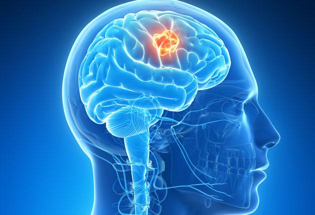 tumora creier